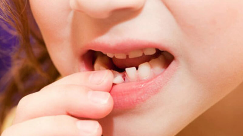 Có nên nhổ răng sữa tại nhà